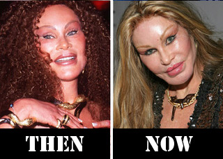 Cat Lady plastic surgery before and after (image hosted by http://tytempletonart.wordpress.com/)